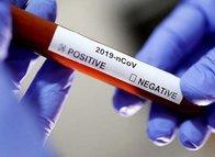 Son dakika corona virüsü haberleri: O rapor ortaya çıktı! Ölüm riskini 2 katına çıkarıyor