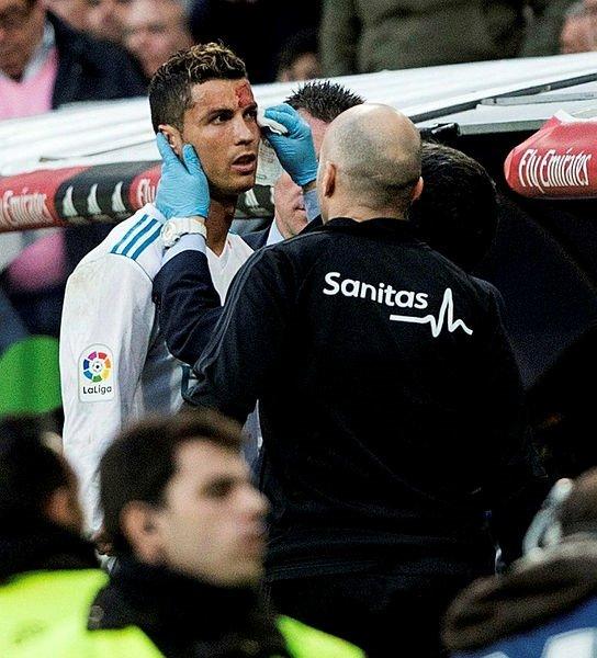 Ronaldo kanlar içinde kaldı...