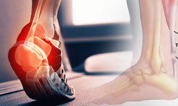 Aşil tendonu nedir? Tedavisi var mı? Aşil tendonu sakatlığı hakkında bilgiler...