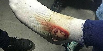 Hasan Ali'nin ayağı delindi