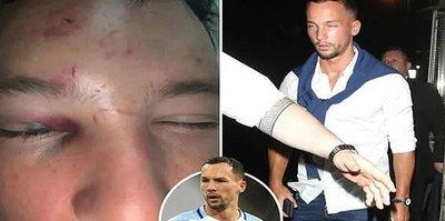 Yıldız futbolcu Drinkwater'a çete saldırısı! Tanınmaz hale getirdiler